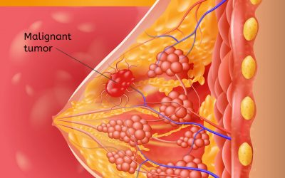 How Does Breast Cancer Spread